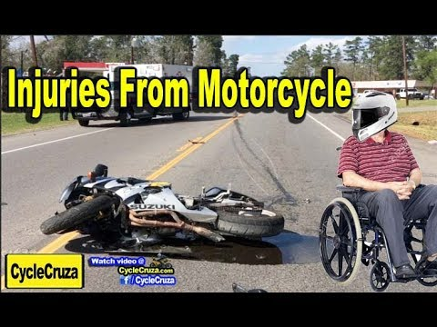 Top 5 INJURIES From Motorcycle CRASHES and Prevention | MotoVlog