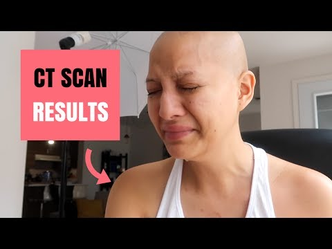 My CT scan results after 6 rounds of chemo - Metastatic Breast Cancer (lungs)