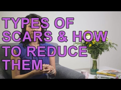 Types Of Scars And How To Reduce Them