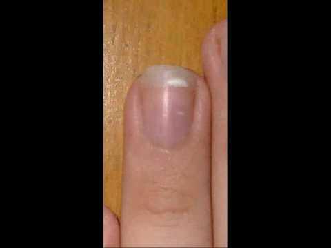 Fingernail Time Lapse