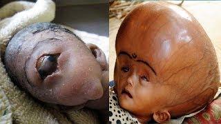 10 Unusual Kids You Wont Believe Were Ever Born