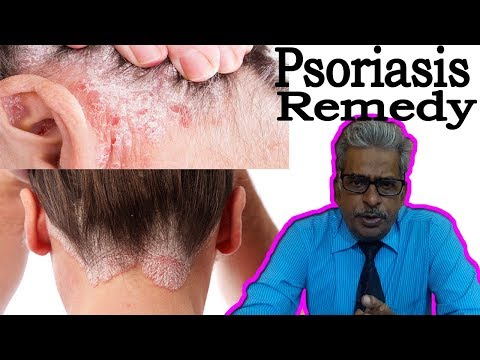 Psoriasis in Hindi - Discussion and Treatment in Homeopathy by Dr P.S. Tiwari