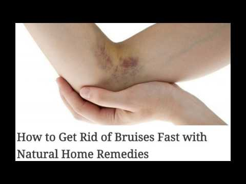 How to Get Rid of Bruises Fast with Natural Home Remedies