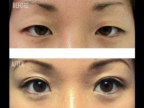 Double eyelids for ALL EYE TYPES WITHOUT SURGERY!