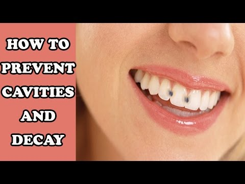 How to Prevent Cavity and Decay | Home Remedies for Cavities and Decay | Cure Cavity Naturally