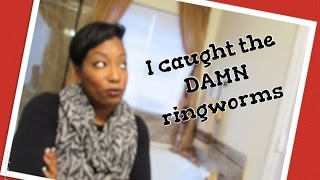 I Caught The Ringworm At The Gym How I Got Rid Of Them In 2 Days