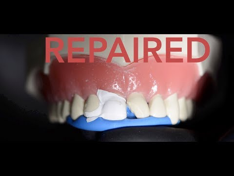 How the dentist repairs a chipped tooth