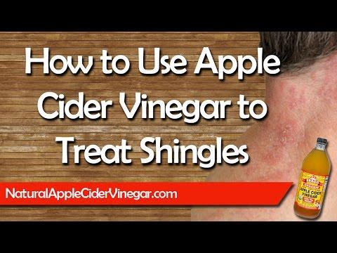Apple Cider Vinegar for Shingles - Natural Home Remedy Treatment