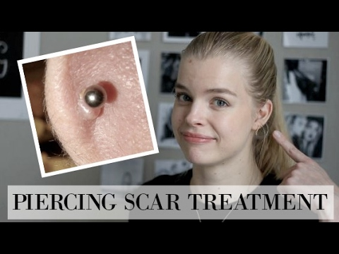 How to treat Hypertrophic Scars/Piercing Bumps!