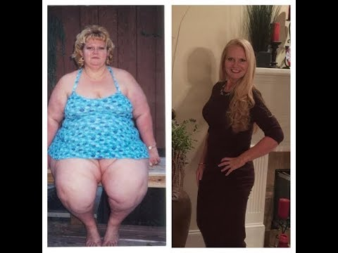 From Bariatric Surgery to Nurse- Ginger Rock's Transformation Story