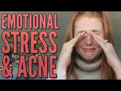 Emotional Stress & Acne: Car Accident, Marriage and Divorce