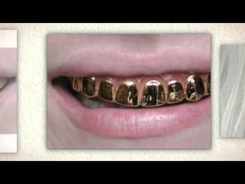 Gold Teeth Crowning