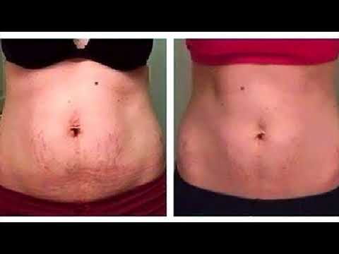 Home Remedies To Tighten Belly Skin After Baby Delivery- Natural Ways To Treat Loose Belly Skin