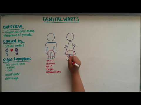 2016 One Minute Clinical Video - Genital Warts