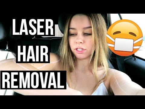 Laser Hair Removal Experience!