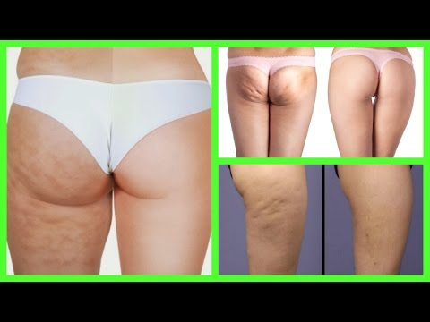 HOW TO GET RID OF CELLULITE NATURALLY FAST AT HOME