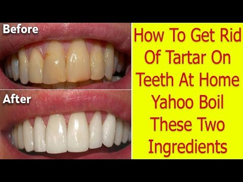 How To Get Rid Of Tartar On Teeth At Home Yahoo | Boil These Two Ingredients