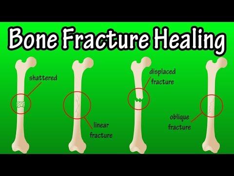 How Does A Bone Break Heal - Bone Fracture Healing Process