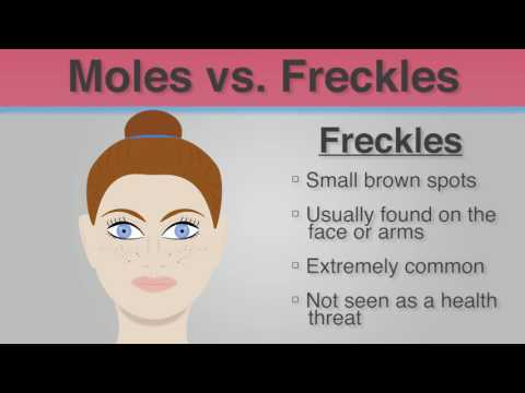 Did You Know - The Difference Between Moles & Freckles