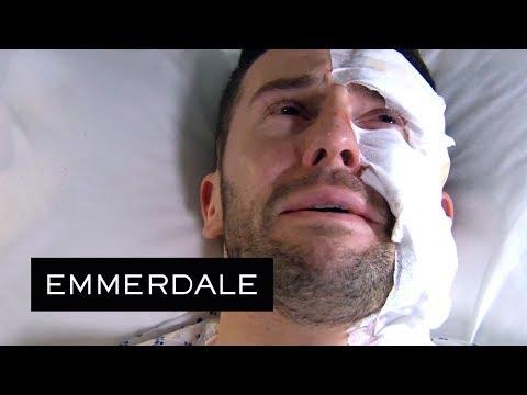 Emmerdale - Ross' Acid Burns Prognosis Brings Him to Tears