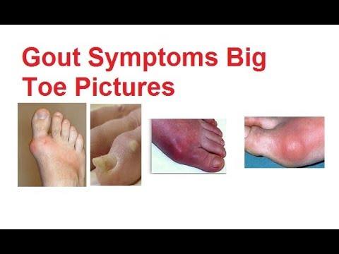 Gout  Pictures Symptoms Big Toe