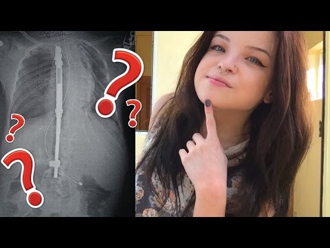 WHY I'M SO SHORT (Scoliosis Q&A)