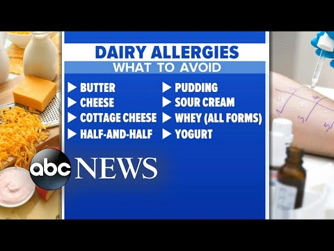 'GMA' Hot List: What to know about kids and dairy allergies