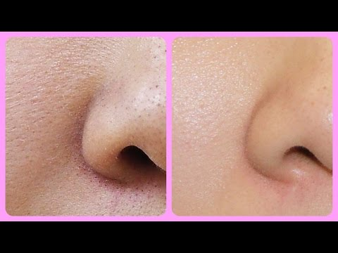 How To get rid of LARGE PORES & get WHITENING SKIN || 1 remedy and 2 solutions