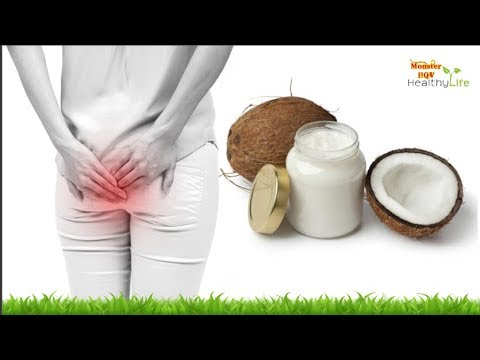 How to Get Rid of Hemorrhoids (Piles) Naturally