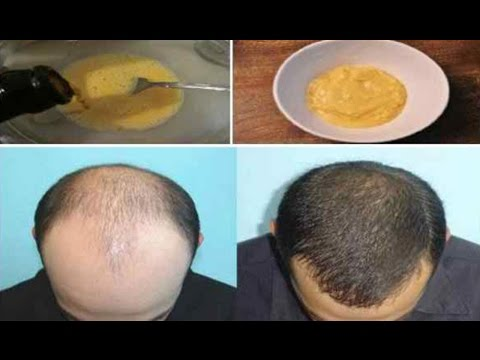 😍HE MIXED BANANA AND BEER AND APPLIED IT TO HIS HAIR – THE RESULTS AFTER 7 DAYS…UNBELIEVABLE!