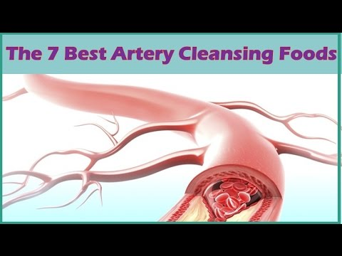 The 7 Best Artery Cleansing Foods