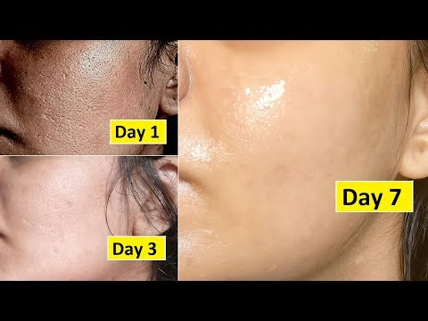 5 Days Skin Repair | Close Large OPEN PORES, Remove Dark Spots, Anti Aging