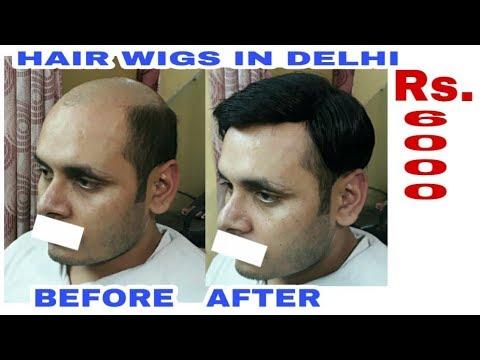 9958962040  price rs 5500  Hair bonding . Hair bonding shop in delhi .  www.rituhairwigs.com