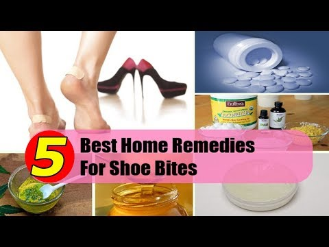 5 Effective Home Remedies to Get Rid of Shoe Bites.