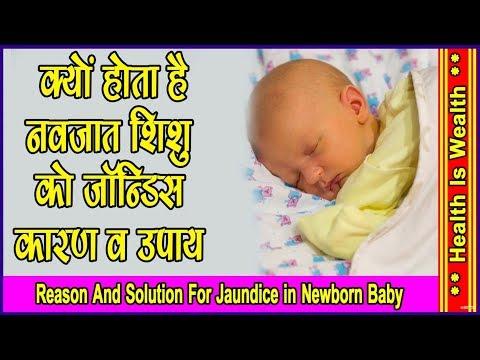 क्यों होता है नवजात शिशु को jaundice  reason and solution  in newborn baby in hindi