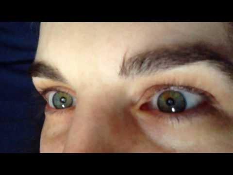 What Sectoral Heterochromia Looks Like In Eyes