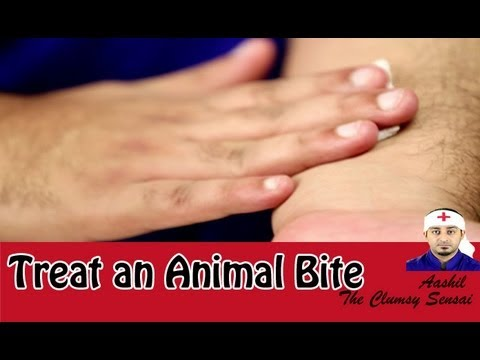 First Aid: How to Treat an Animal Bite