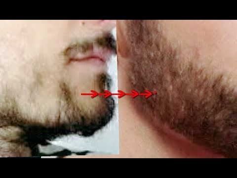 ➽ Turn Patchy beard to Thick beard in 7 days|| Natural Home Remedies