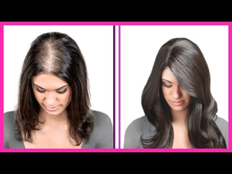 She Had Very THIN HAIR But She Used This Oil And Got THICK HAIR With in 30 DAYS Naturally
