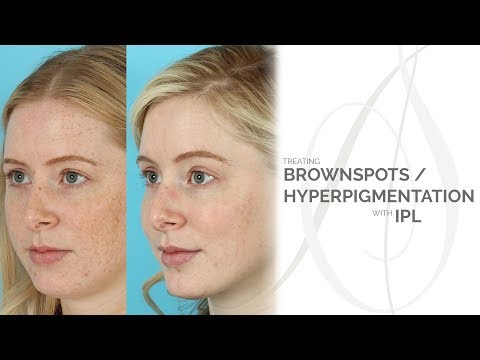 Treating Brownspots and Hyperpigmentation with IPL