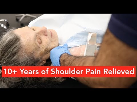 10+ Years of Shoulder Pain Relieved in 1 ASTR Session (Total Shoulder Replacement)