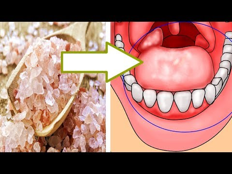 5 Natural Remedies For Sore Throat