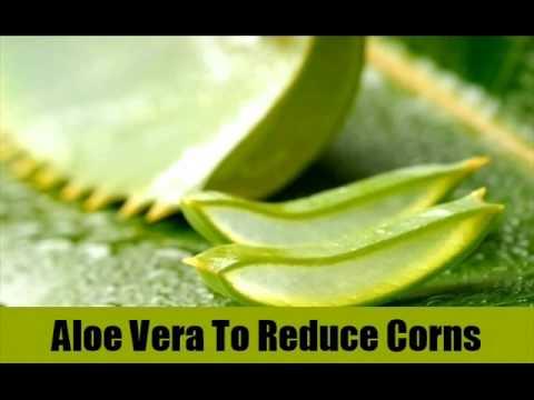 10 Natural Treatment For Corns