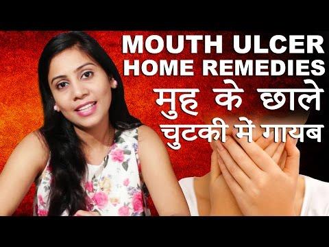मुह के छाले ठीक करने के घरेलु उपाय │ Cure Mouth Ulcer │ Imam Dasta │ Home Remedies in Hindi