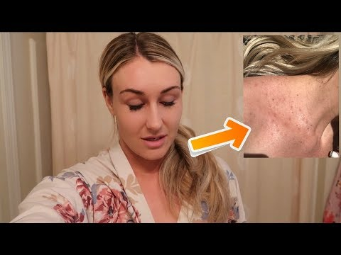 WHAT IS THIS?!   RASH OUTBREAK   DAY IN THE LIFE VLOG   Tara Henderson