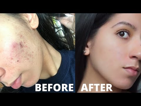 HOW TO CURE ACNE | Hormonal Acne | Cystic Acne