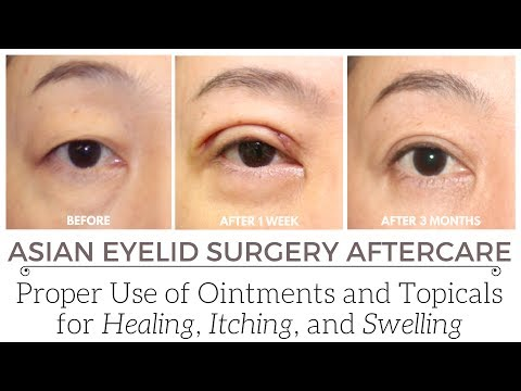 Why Antibiotic Ointments Should be Limited to the First Few Days After Eyelid Surgery