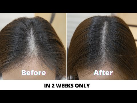 How to Stop Hair fall and grow hair faster- 3 Natural Hair remedies to try at home