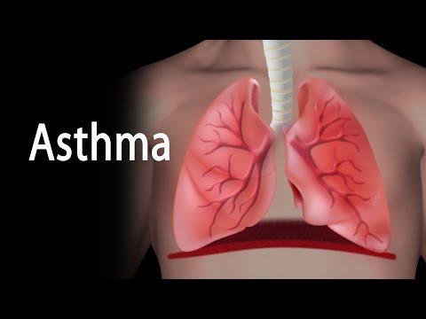 Asthma, Animation.