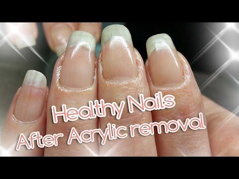 Acrylic Nail Removal | For Healthy Nails